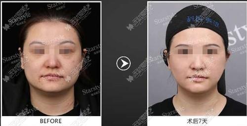面部轮廓不清晰在南通星范做埋线提升效果