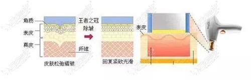 M22光子嫩肤美肤仪原理