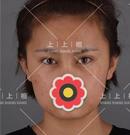 借楼答北京上上相郑楚蓉做的自体脂肪填充面部凹陷怎么样