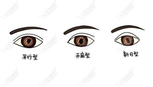 不同形状的双眼皮