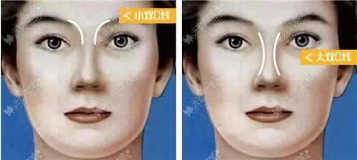 吴昌炎隆鼻设计双c线