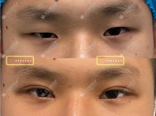 张霞飞做双眼皮很自然