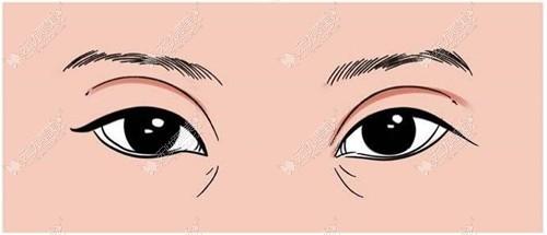 双眼皮割宽了能修复吗