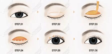 双眼皮手术过程