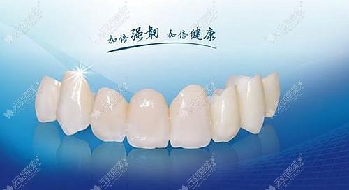 国产爱尔创全瓷牙的颜色更自然