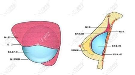 假体隆胸放置的位置