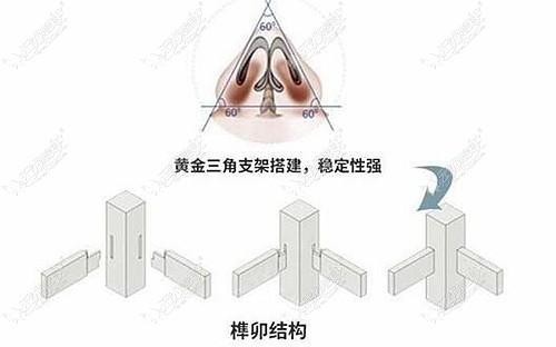 杨效波主任做鼻综合的技术优势