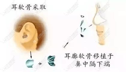 耳软骨隆鼻手术过程