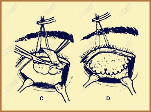 额肌瓣悬吊术的原理