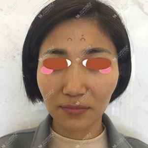做面部脂肪填充术前照片