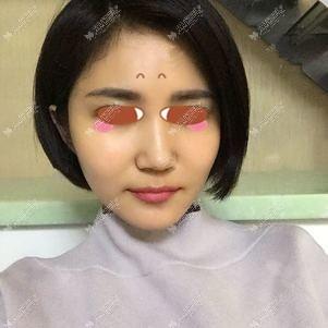 在新疆整形医院做面部脂肪填充半个月