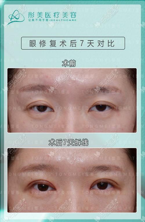 眼皮松弛修复案例