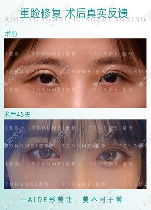 宽窄双眼皮修复案例