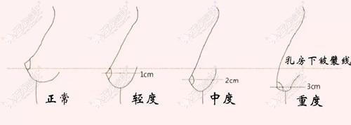 胸部下垂的轻重程度