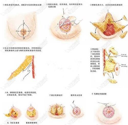 乳房花苞提升术的原理