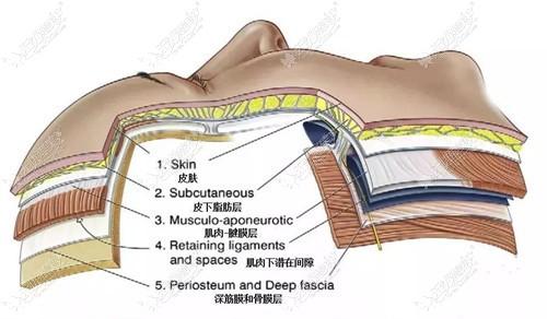 SAMS筋膜埋线环提术