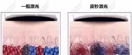 皮秒激光祛斑的优势