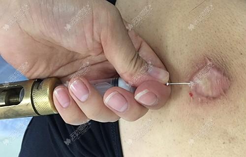 疤痕软化针的作用