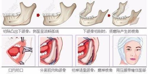 下颌角加外板手术过程