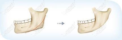 下颌角手术优势