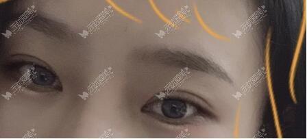 6毫米扇形双眼皮效果图
