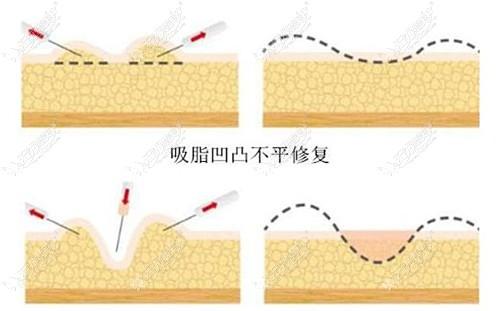 大腿环吸凹陷修复手术原理