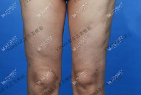 做大腿吸脂1年了内侧凹凸不平还能修复好吗?实例参考一下