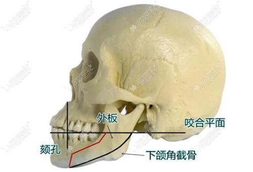 做长曲线下颌角截骨手术必须做外板吗?怕劈外板后脸会垮