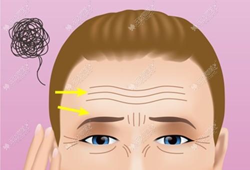 额头做小切口除皱能保持几年?来结合着手术恢复图找答案吧