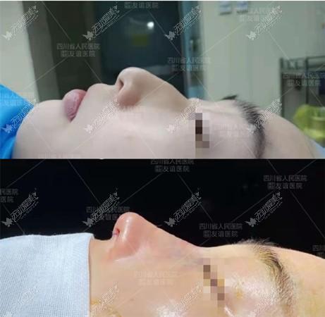 用驼峰鼻磨骨手术过程及真实图片证实:不会凹凸不平和增生
