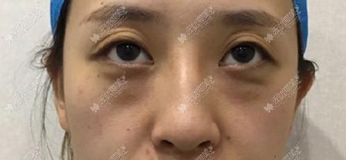 欧洲之星fotona4d祛眼袋有效,做一次眼部对比效果都挺明显的