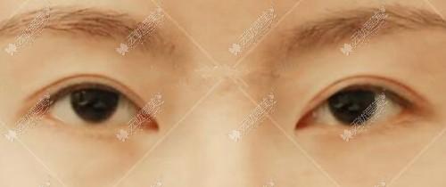 魏志香成功修复内眼角过程:从下勾像鹰嘴到自然回包的转变