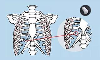 肋骨隆鼻加筋膜和不加筋膜的区别