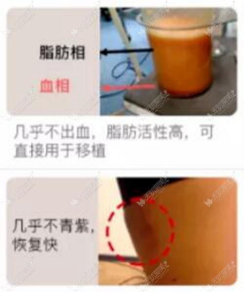 程红涛医生做5G光雕吸脂的优势
