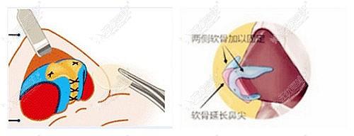 顿兆医生做鼻修复的优势