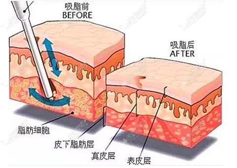 水雾吸脂和动力吸脂的原理区别