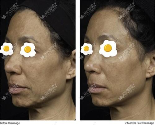 5代热玛吉面部除皱前后对比案例