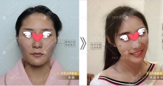 微创一针降颧骨颧弓的危害是做完脸会下垂,做过的人来辟谣