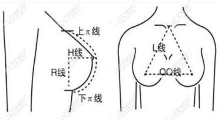隆胸假体选择标准