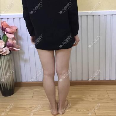 做自体脂肪移植矫正o型腿的费用得6万,贵不贵?我一点不懂呀