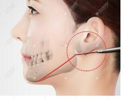 我的下颌角做失败了,之前切多了导致弧度消失,可以修复吗?