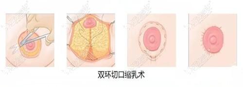 深圳南雅的花苞精雕术和双环法都能提升胸部,但区别可大了