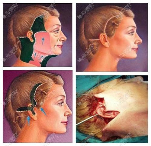 35岁面部松弛做内窥镜拉皮手术后,才明白跟普通拉皮不一样