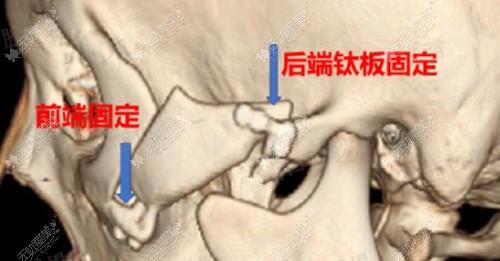 成都东篱医院的李运峰做颧骨内推后用的是不固定的方式吗?