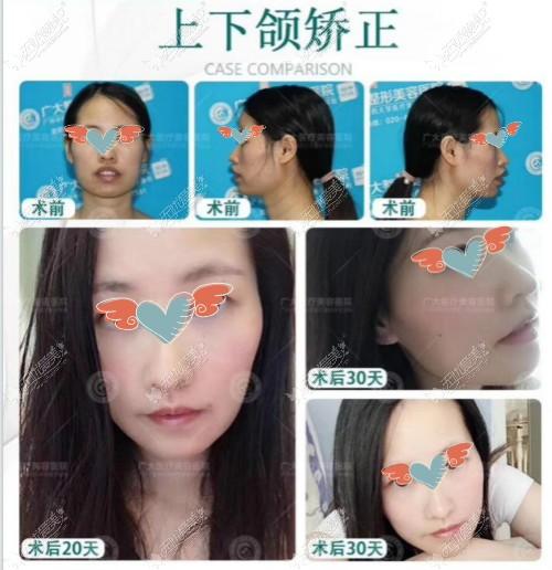 广大何锦泉博士做正颌手术真实案例效果图