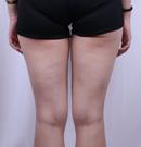 真人测评哈尔滨李开征医生的大腿吸脂手术,受欢迎是有理的术前