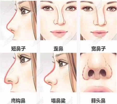 鼻子基础不同隆鼻手术方案也大有区别