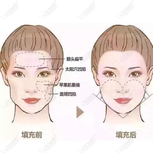 面部脂肪加减法案例