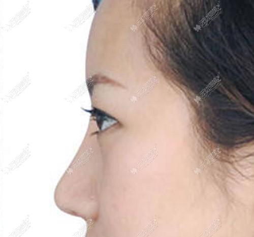 石良兵的耳软骨鼻子案例