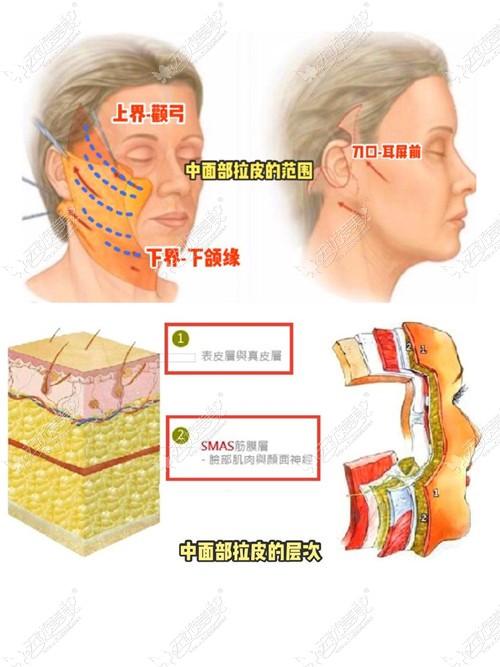 小拉皮手术的层次分配